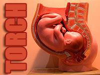 Waspadai TORCH Saat Kehamilan