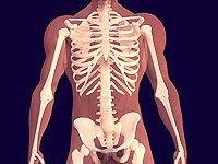 Tulang Sehat Bebas Osteoporosis